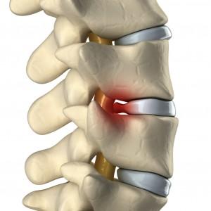 sciatica disc disease